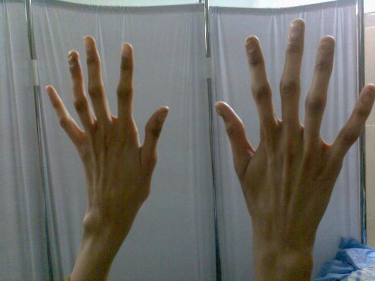 Руки человека с арахнодактилией