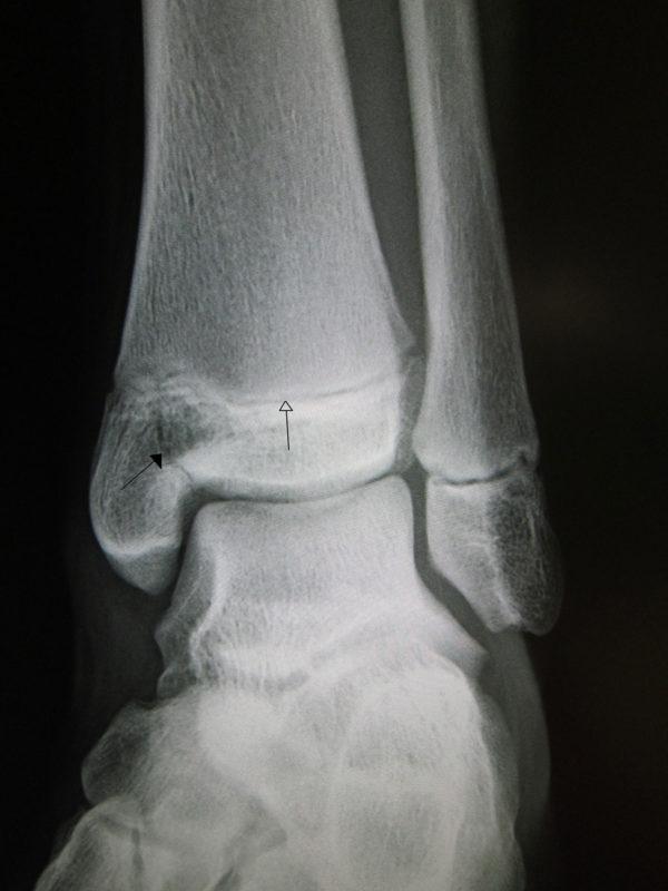 Рентгеновский снимок голеностопного сустава с эпифизеолизом медиальной лодыжки. Черная стрелка - линия перелома, белая указывает на ростковую зону.