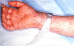 Типичная сыпь при пятнистой лихорадке Скалистых гор