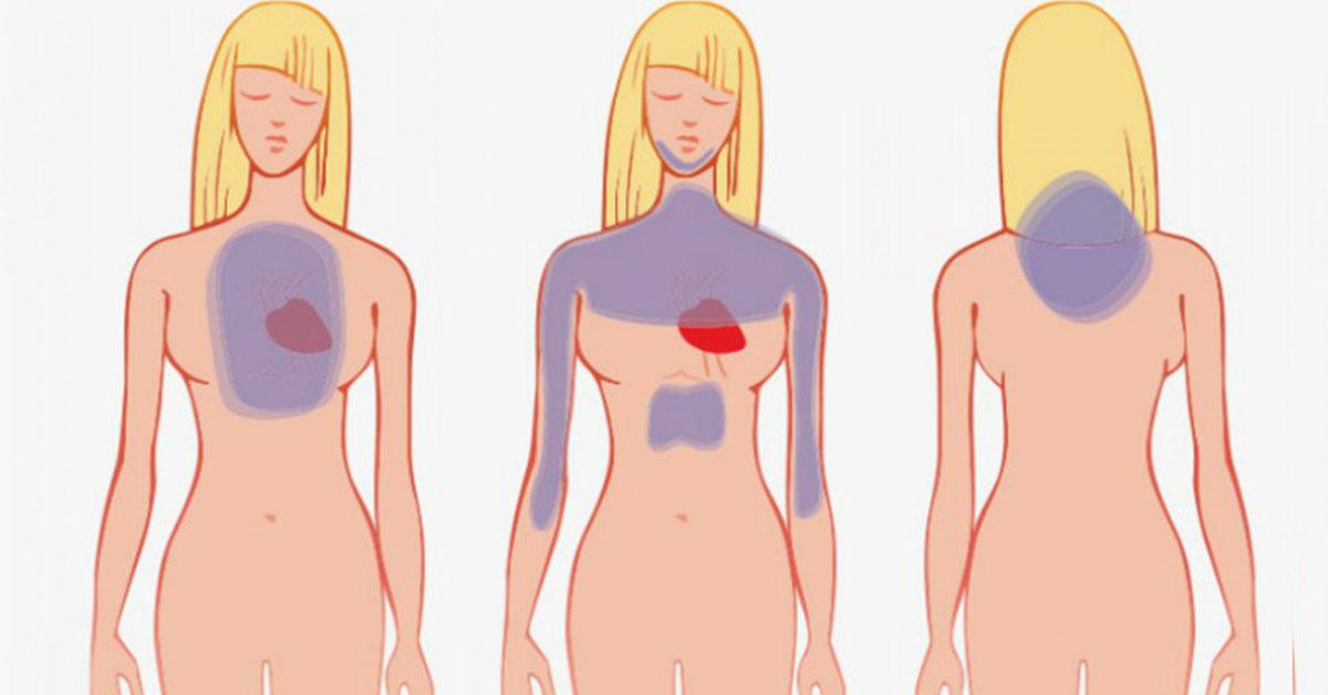 Основные места проявления симптомов грядущего сердечного приступа
