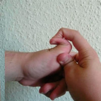 Демонстрация гиперэластичности кожи и гиперподвижности суставов при синдроме Элерса — Данлоса.