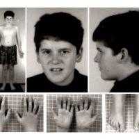 Проявление синдрома Прадера — Вилли в 15-летнем возрасте в виде отсутствия типичных черт лица и наличия мягкого стволового ожирения.