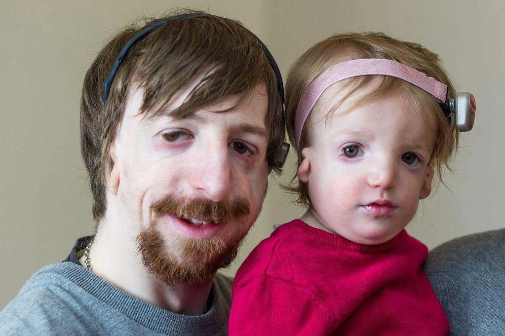 Отец и дочь с синдромом Тричера Коллинза