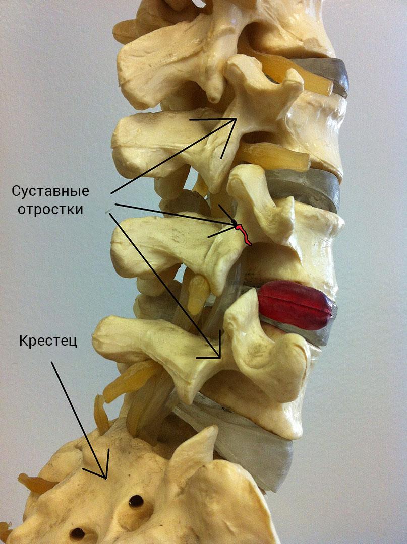 facet arthropathy with retrolisthesis