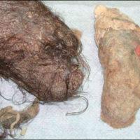 Безоары, найденные в желудке 18-летней девочки