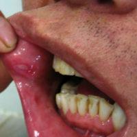 Язвы во рту при болезни Бехчета
