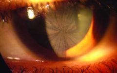 Глазные проявления болезни Фабри