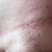 Кожные проявления болезни Фабри