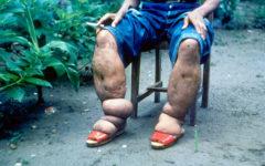 Слоновости ног вследствие филяриатоза