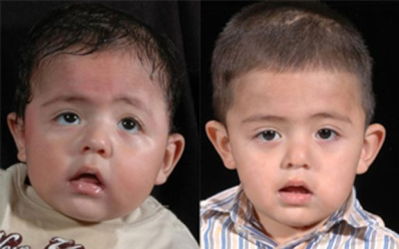 Ребенок с краниосиностозом до и после операции