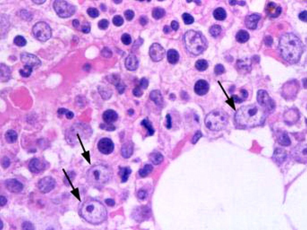 Миелодиспластический синдром: рефрактерная анемия с кольцевыми сидеробластами