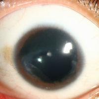 Фото глаза человека с аниридией