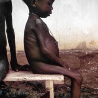 Ребёнок, больной квашиоркором, в лагере для беженцев во время Нигерийской гражданской войны (1967—1970)