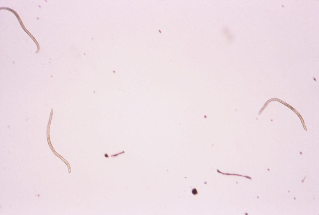 Onchocerca volvulus — возбудитель онхоцеркоза