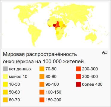 Онхоцеркоз: распространенность