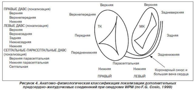 Анатомо-физиологическая классификация локализации дополнительных предсердно-желудочковых соединений при синдроме WPW