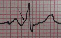 Признаки синдрома Вольфа — Паркинсона — Уайта (WPW) на кардиограмме.