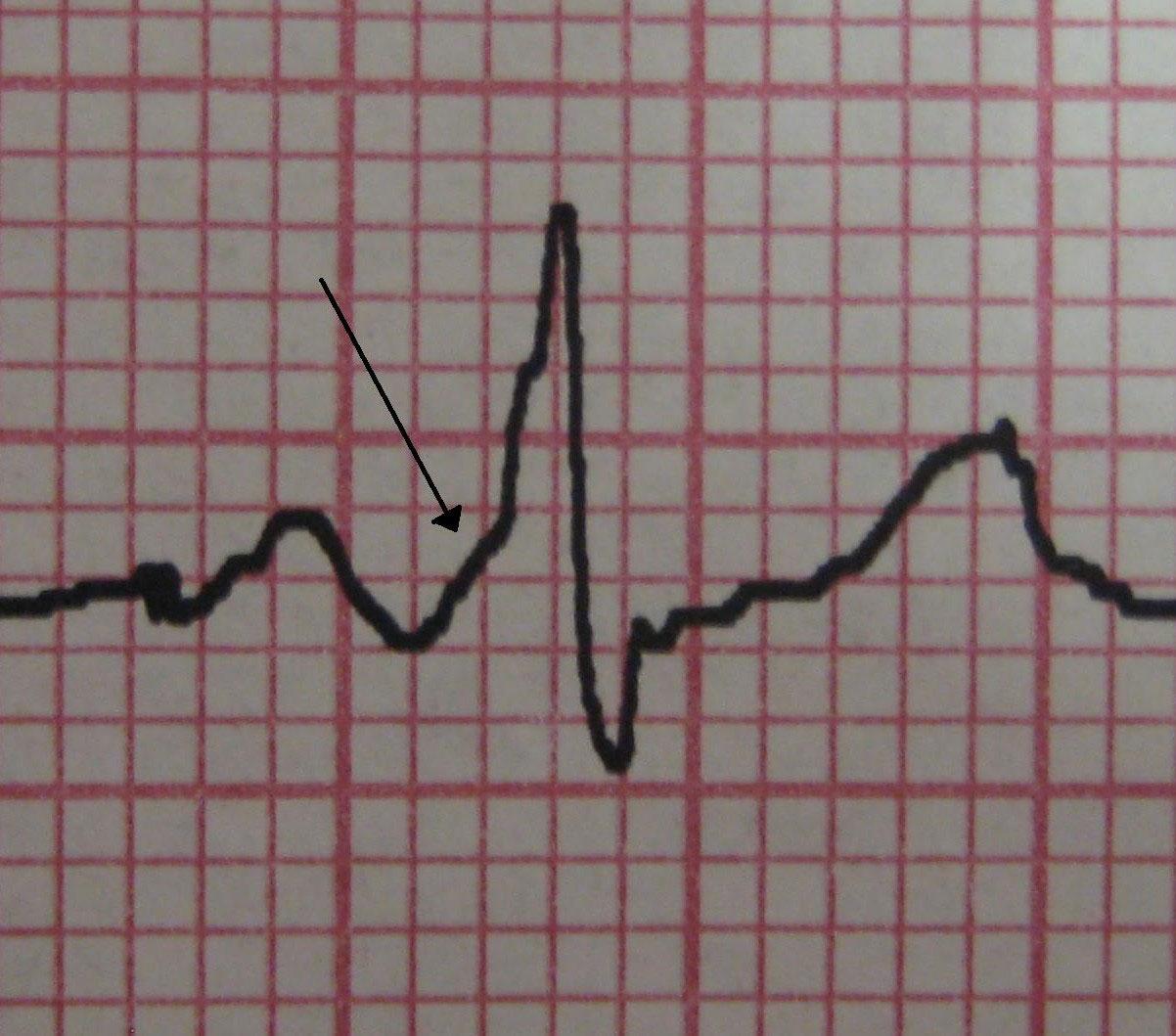 Синдром Вольфа – Паркинсона – Уайта (WPW): причины, симптомы, диагностика и лечение