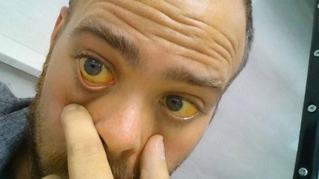 Пожелтение кожных покровов и белков глаз при гепатите C