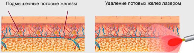 Удаление потовых желез лазером
