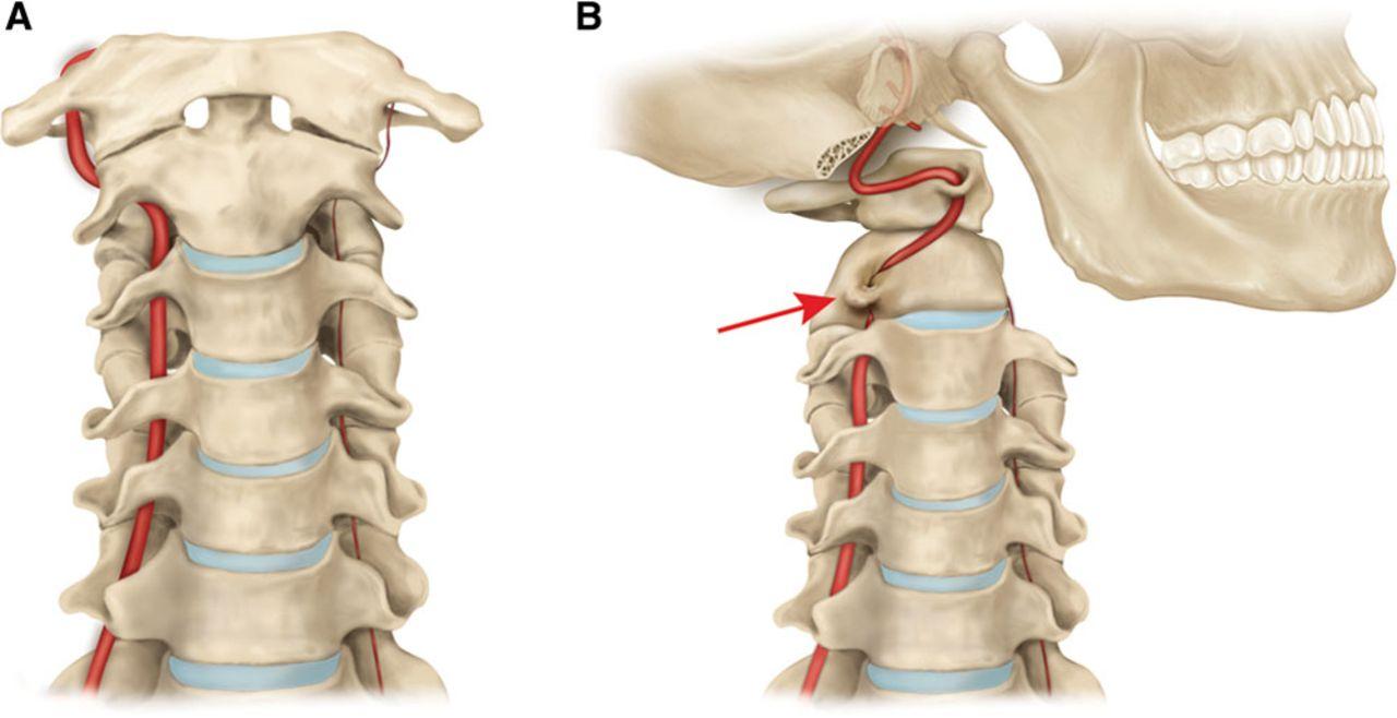 Синдром позвоночной артерии — симптомы и лечение
