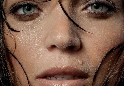 Как выглядит гипергидроз лица