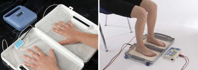 Как проводится ионофорез при гипергидрозе ладоней и стоп
