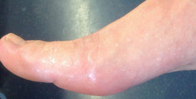 При тяжелой степени гипергидроза стопы покрываются каплями пота