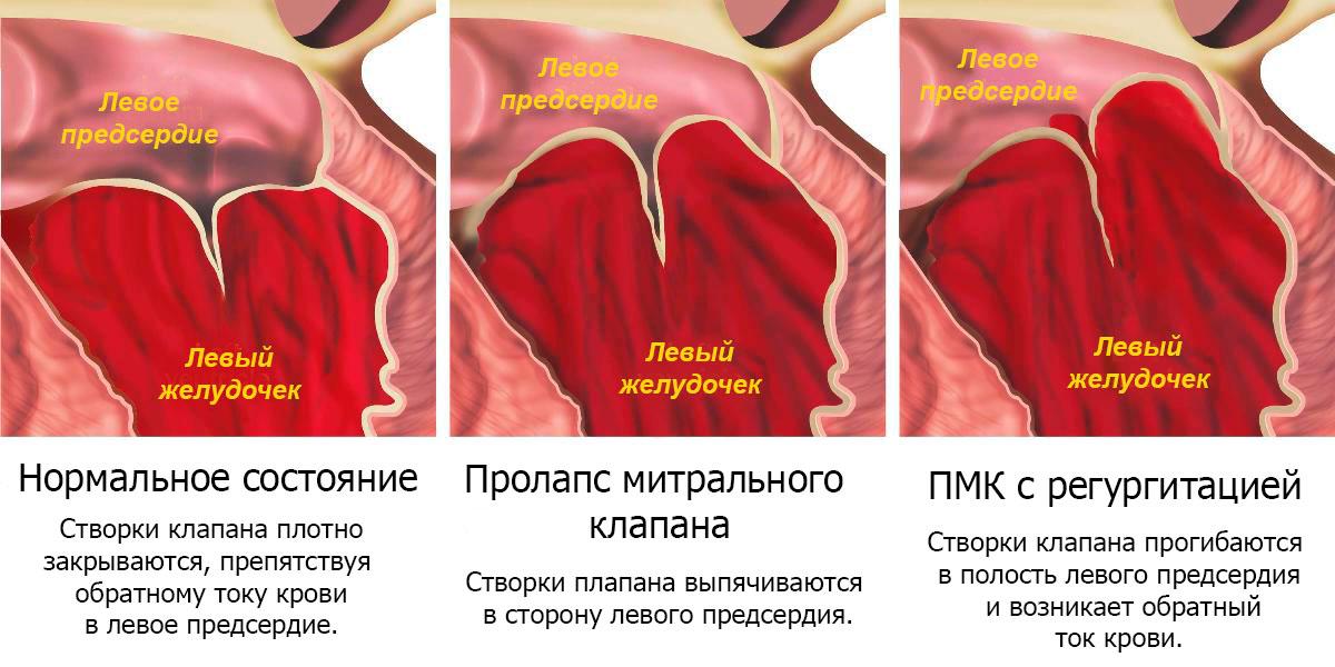 Аритмия при пролапсе митрального клапана лечение