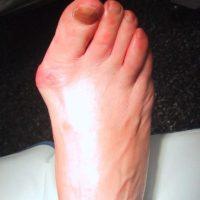деформация большого пальца стопы лечение
