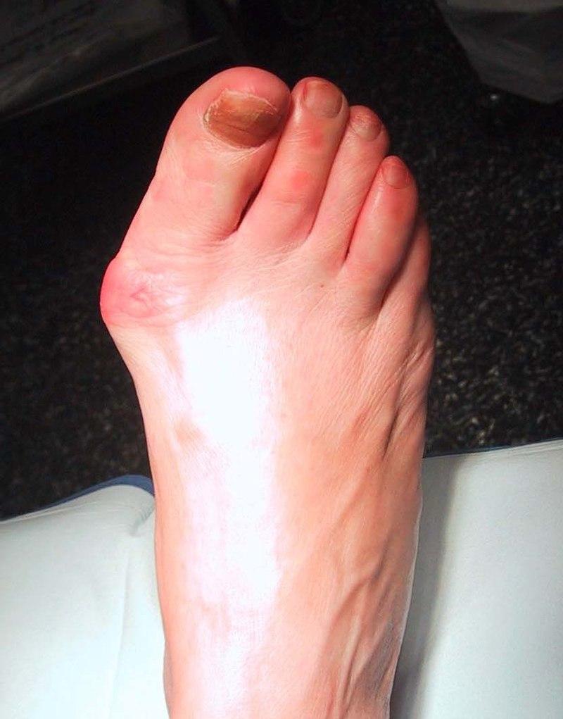 Медикаментозное лечение и операционное исправление вальгусной деформации большого пальца стопы
