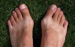Хотя косточка на ноге считается женской проблемой, данное заболевание встречается также и у мужчин.