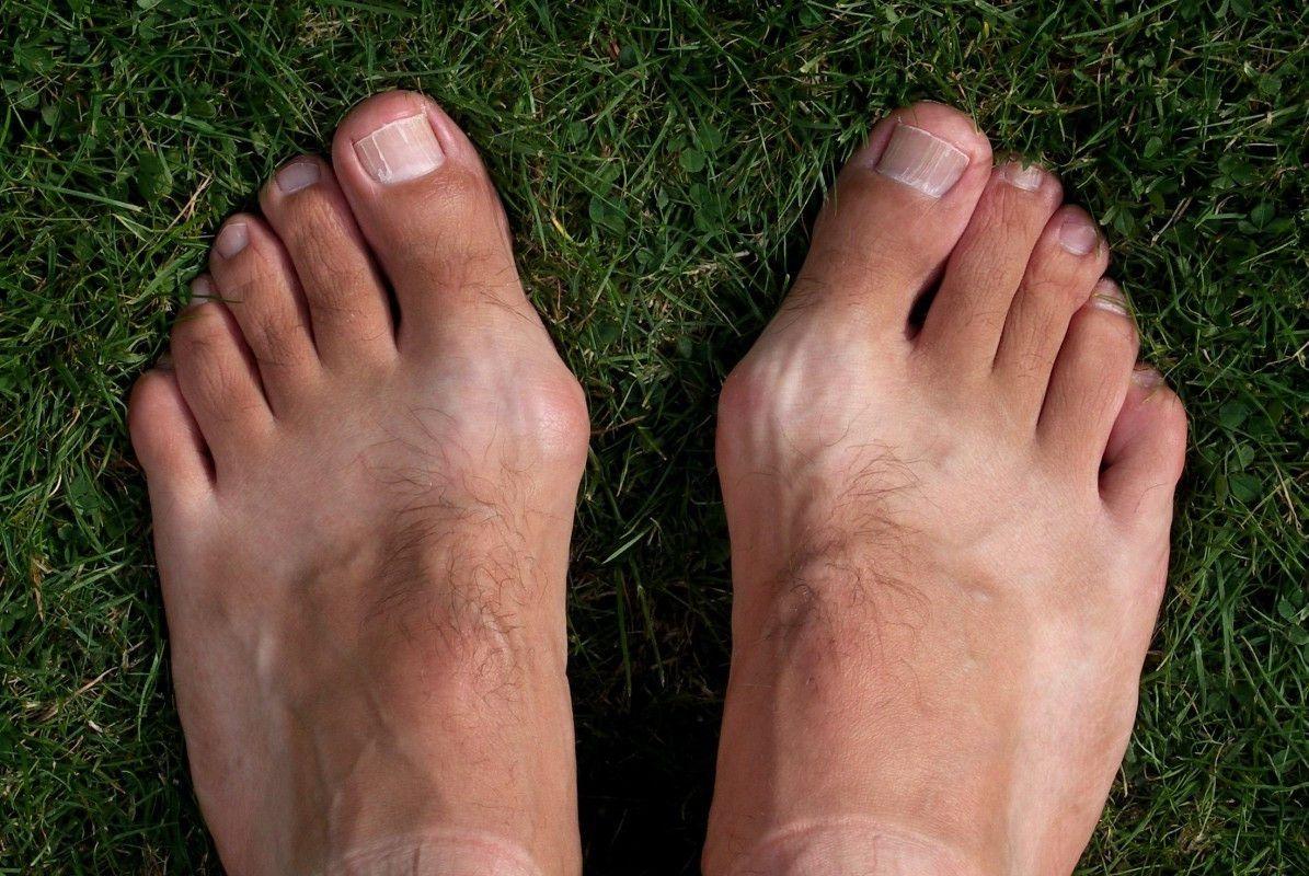 Почему растет косточка на ноге