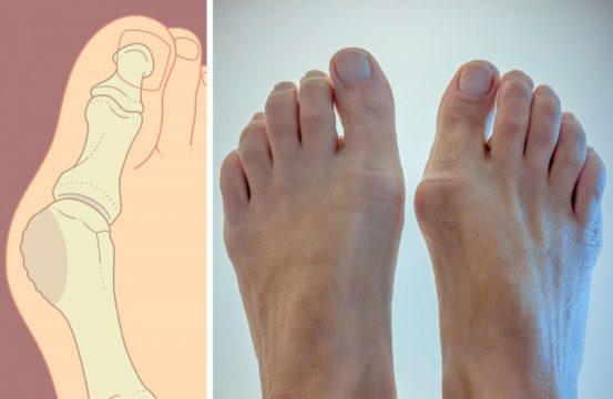 Как выглядит косточка на большом пальце ноги.