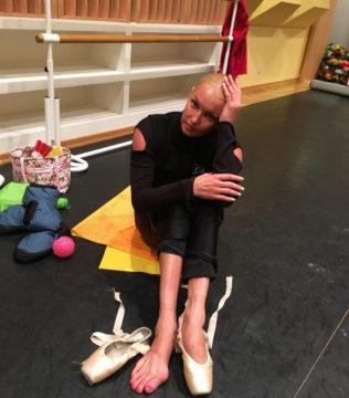 Вальгусная деформация большого пальца стопы - профессиональная болезнь балерин.