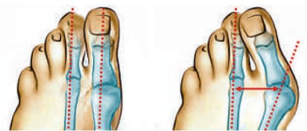 Строение переднего отдела стопы в норме и при деформации большого пальца.