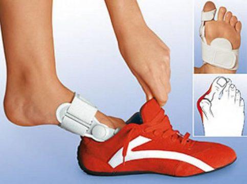 Конструкция некоторых видов ортопедических изделий, которые применяются при косточке на ноге, позволяет носить их в течение рабочего дня.