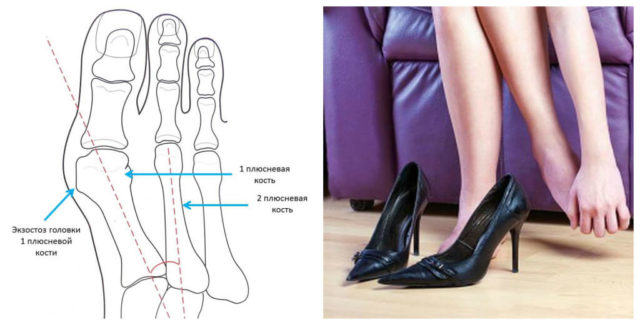 Обувь на высоком каблуке при наличии косточки на ноге противопоказана.