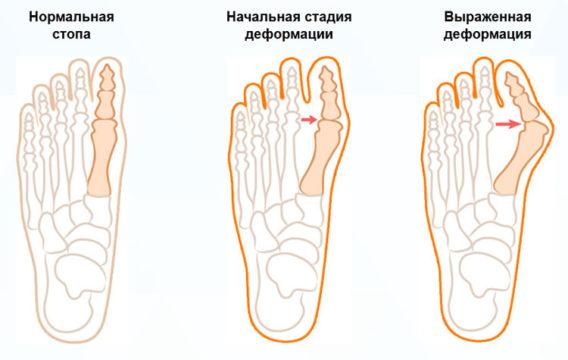При отсутствии своевременного лечения косточка на ноге увеличивается в размерах, а деформация большого пальца прогрессирует.