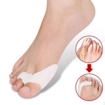 Вальгусный фиксатор для большого пальца стопы помогает вернуть палец в нормальное положение.