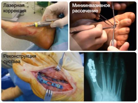 Малоинвазивные и традиционные методы, которые применяются при различных типах вальгусной деформации большого пальца стопы.