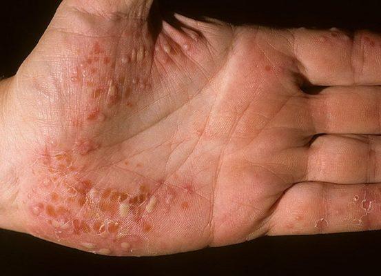 Пустулезный псориаз ладоней и подошв лечение причины и особенности