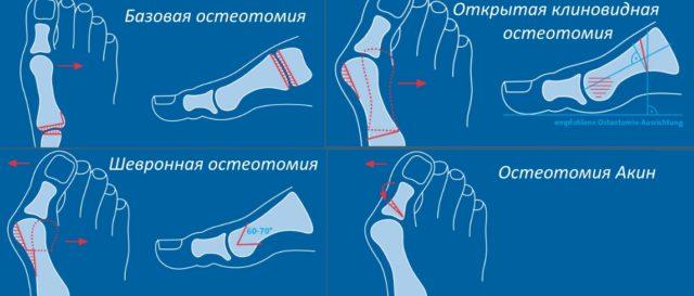 Различные методы пересечения кости при удалении косточки на ноге.