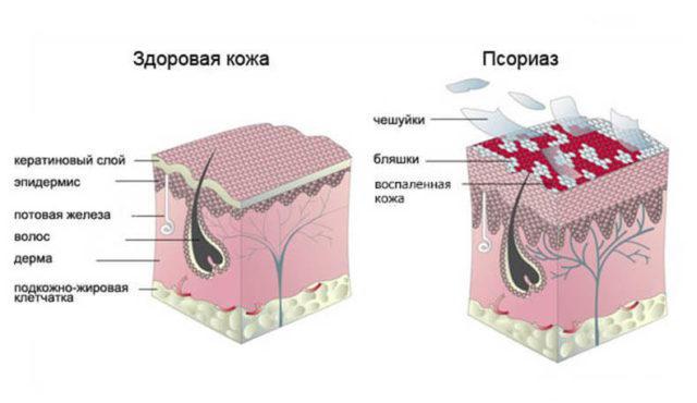 Изменение кожи при псориазе