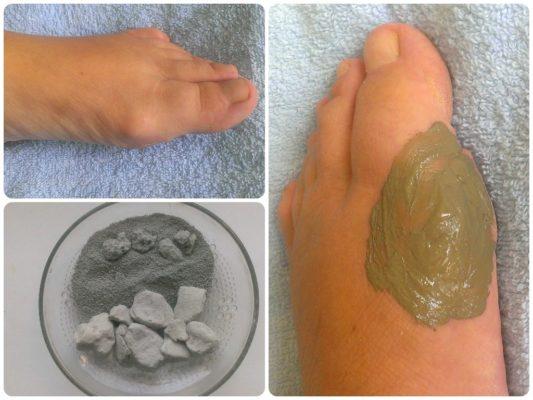 Компресс из глины от косточки на ноге
