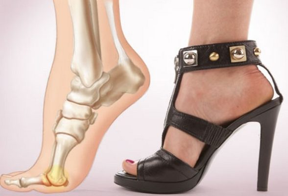 Почему на ноге растет косточка возле большого пальца что делать