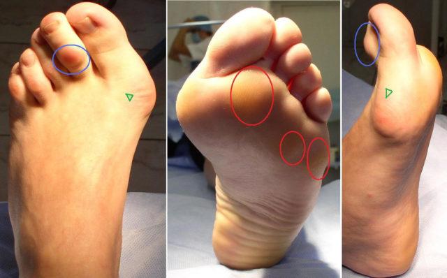 Признаки развития вальгусной деформации большого пальца стопы