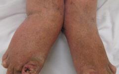 Тяжелый псориатический артрит обеих стоп и лодыжек. Обратите внимание на изменения ногтей.