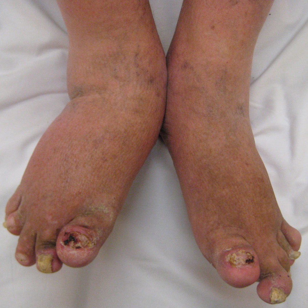 Псориатического артрита