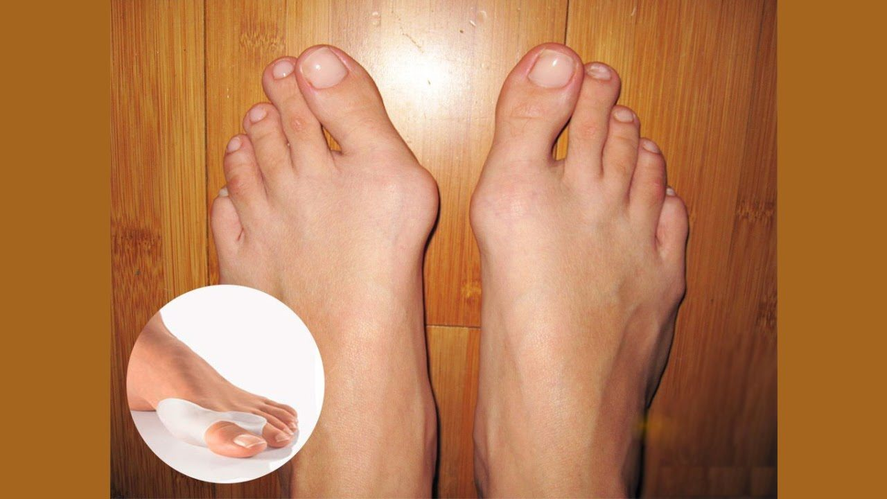 Шишка на ноге возле большого пальца